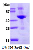 AR39056PU-L - Adenosine deaminase