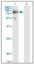 AM31726PU-N - SERPING1 / C1 Inhibitor