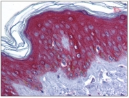 AP31620PU-N - Junction plakoglobin