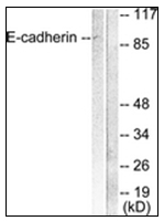 AP31616PU-N - CD324 / Cadherin-1