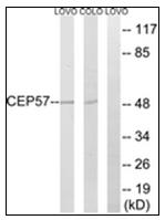 AP31613PU-N - CEP57