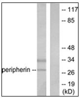 AP31608PU-N - UCHL1 / PGP9.5