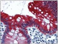 AP31607PU-N - Cytokeratin 19