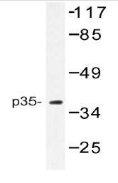 AP06734PU-N - CDK5R1 p35