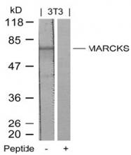 AP02779PU-S - MARCKS