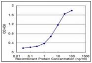 AM31762PU-N - Fatty acid desaturase 1 (FADS1)