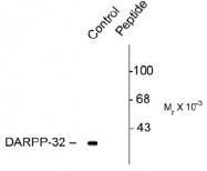 AP31631PU-N - DARPP32