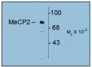 AP31635SU-N - MeCP2