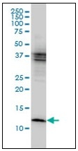AM31773PU-N - Cystatin-B