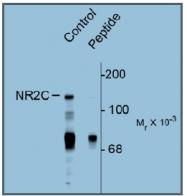 AP31640PU-N - NMDA Receptor 2C