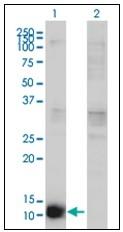 AM31774PU-N - Cystatin-B
