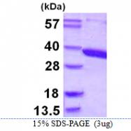 AR39076PU-L - Aminoacylase-3 / ACY3