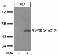 AP02535PU-S - GSK3 beta