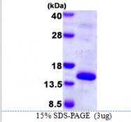 AR39086PU-L - Cystatin-M