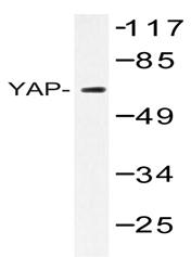 AP06695PU-N - YAP1