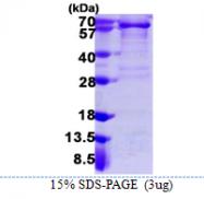 AR39093PU-N - CD140a / PDGFRA