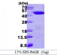AR39108PU-L - Hydroxyacid oxidase 1 / HAOX1