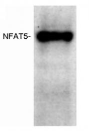 SP5110P - NFAT5