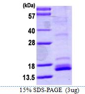 AR39115PU-L - Neurotrophin 4 / NTF4