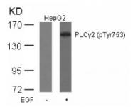 AP02452PU-N - PLCG2