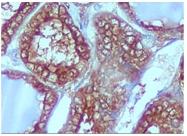 AM10088SU-N - Galectin-3