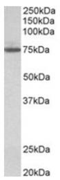 AP31691PU-N - Transglutaminase-4 (TGM4)