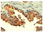 AP16289PU-N - ABCC4 / MRP4