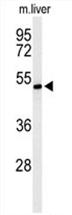 AP54641PU-N - ZDHHC9