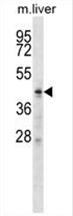 AP54639PU-N - ZDHHC6