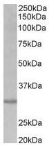 AP31687PU-N - Cardiolipin synthetase