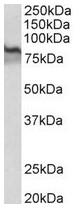 AP31689PU-N - Transglutaminase-2 (TGM2)