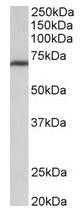 AP31698PU-N - MTHFR