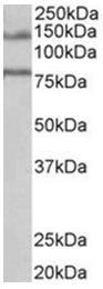 AP31721PU-N - EPB41L5