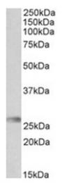 AP31719PU-N - HLA-DQA2
