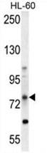 AP50017PU-N - ABCD1 / ALDP