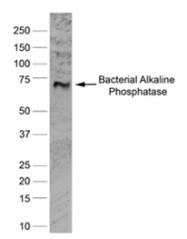 BM217 - Alkaline phosphatase / ALPL