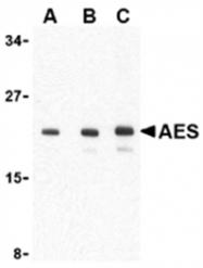 SP2180P - AES / ESP1