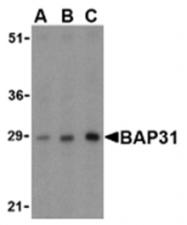SP2167P - BCAP31 / BAP31