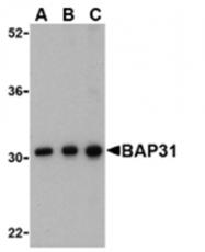 SP2168P - BCAP31 / BAP31