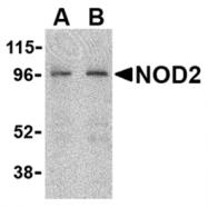 AP05558PU-N - NOXA