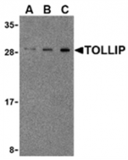 AP05562PU-N - TOLLIP