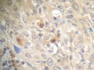 SP2184P - CD154 / CD40L