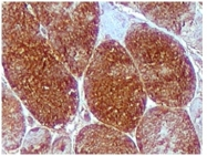 AP10436PU-N - Myoglobin