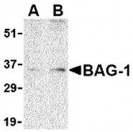 AP05586PU-N - BAG1