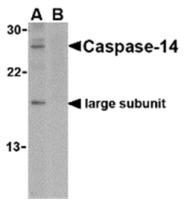 AP05590PU-N - Caspase-14