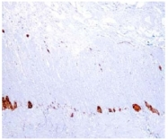 AP10438PU-N - UCHL1 / PGP9.5