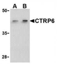 AP05592PU-N - C1QTNF6