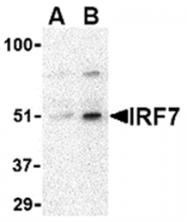 AP05594PU-N - IRF7