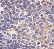 AP05596PU-N - CD281 / TLR1