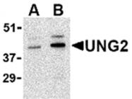 AP05615PU-N - Uracil-DNA glycosylase 2 / Cyclin-O